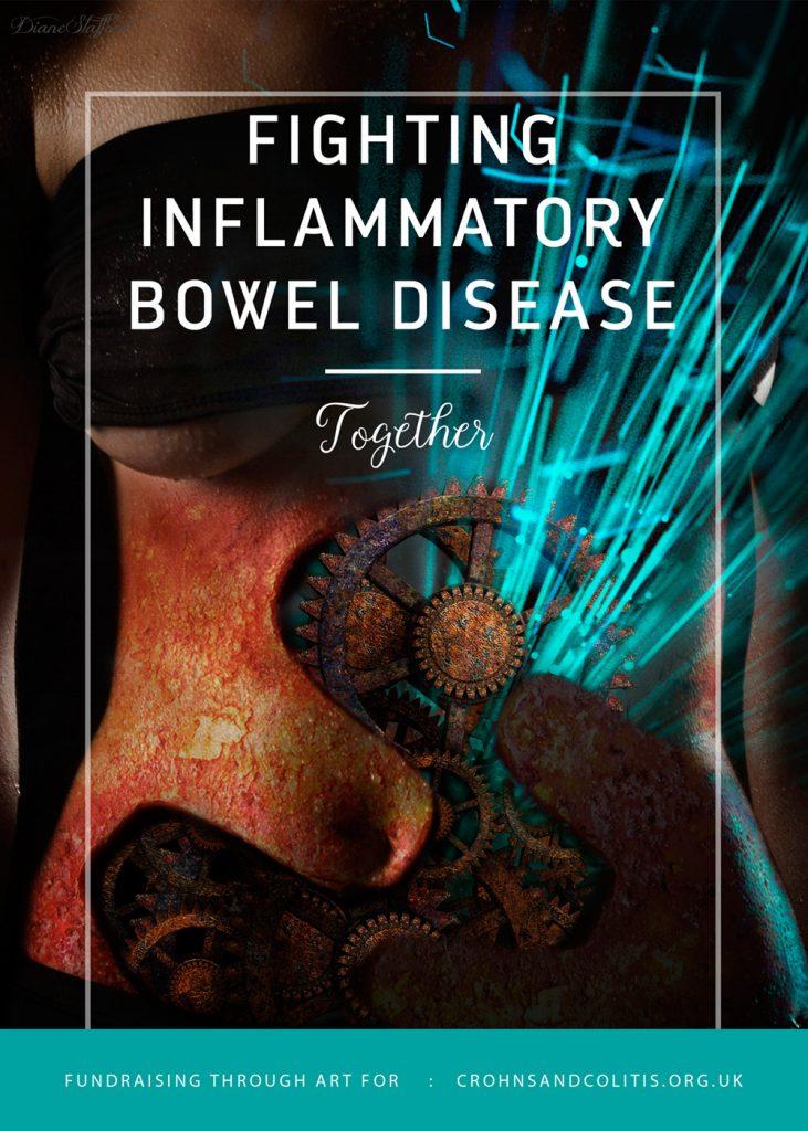 Crohns Disease social image